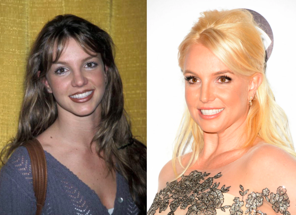 celebrities Admitted having Plastic Surgery